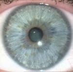 Gesundheitsvorsorge München, Augendiagnose